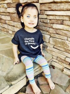 Chinese girl with silver eyes adopted