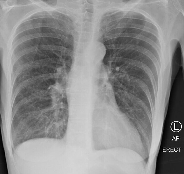 Effect of COVID-19 on the Lungs